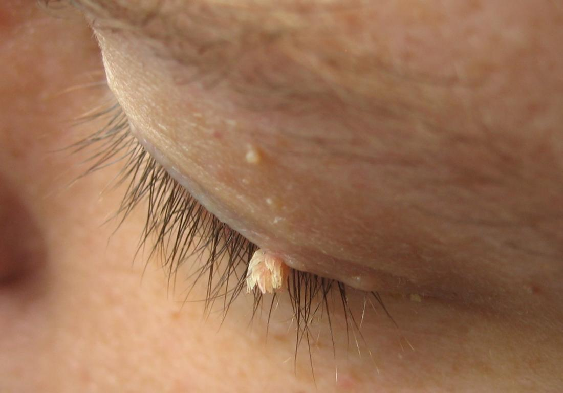 virus papiloma condiloma acuminado remedii pentru viermi la un copil