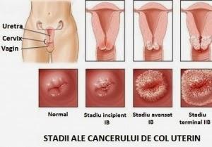 condiloame la nivelul colului uterin hpv symptoms weight loss