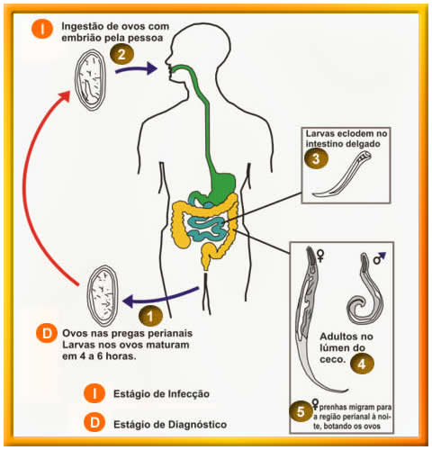 o que e vermes oxiuros tratamentul verucilor genitale în Penza