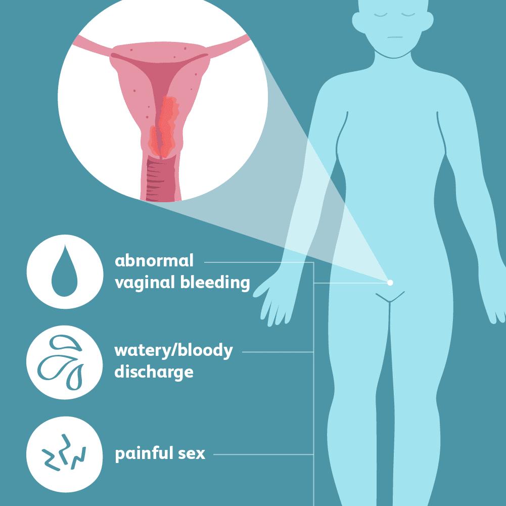 Endometrial cancer on pregnancy. Endometrial cancer by age