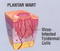 coagularea undelor radio a papiloamelor hpv vaccino nonavalente