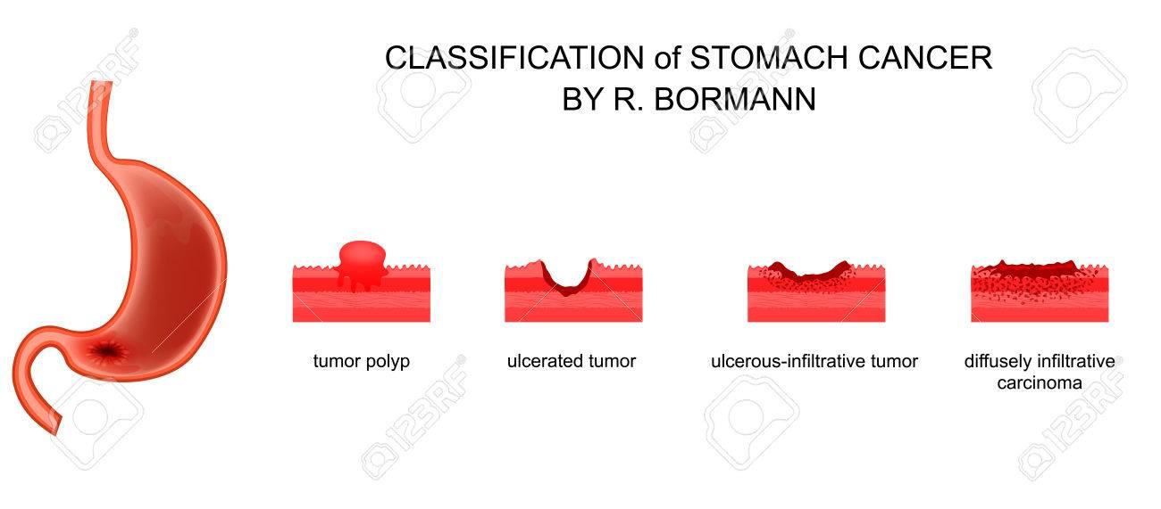 gastric cancer bormann