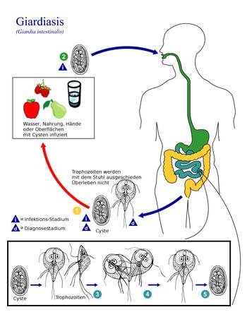 giardien mensch în medicamente distrugerea negi genitale