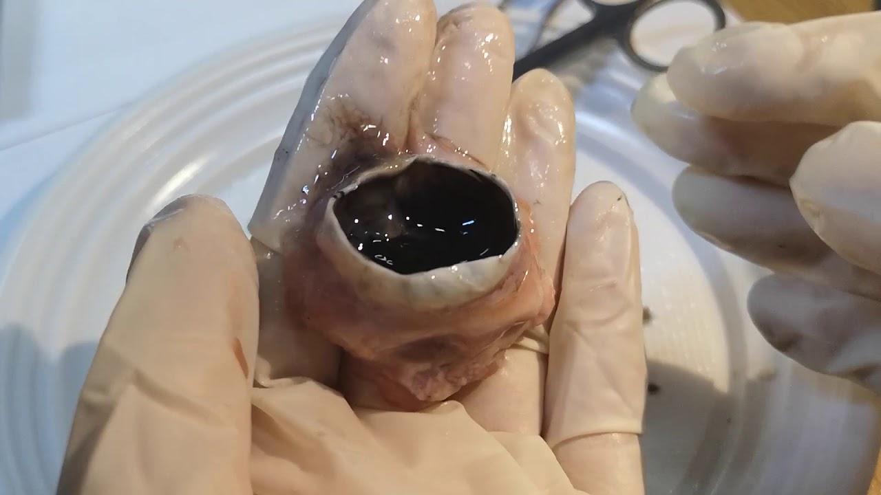 helmintele ochiului uman