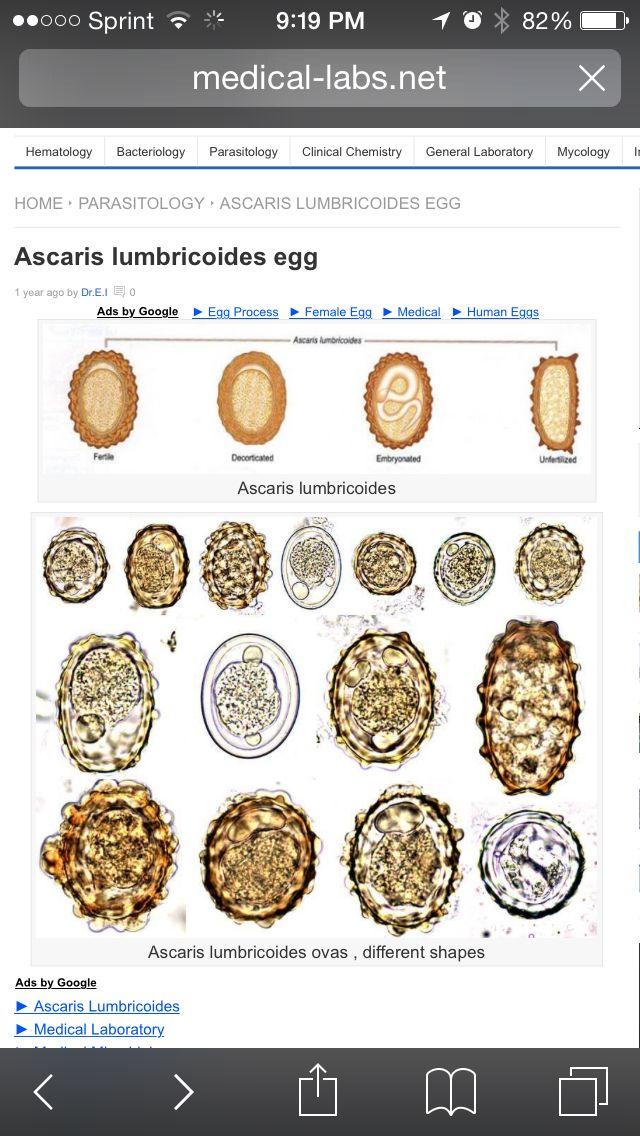 helminths paraziti poze que puedo tomar para los parasitos oxiuros