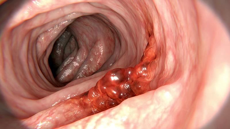 hpv bowel cancer papillom entfernen mund