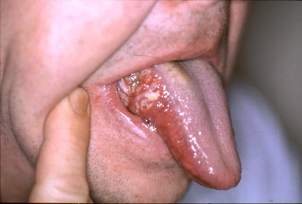 hpv cancer tongue