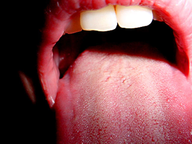 Hpv mouth and throat cancer Hpv mouth cure