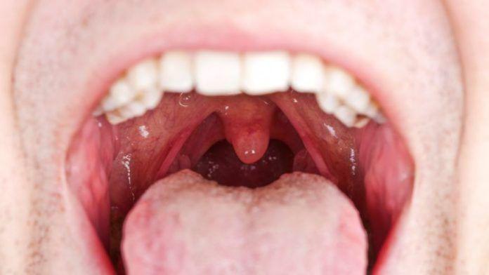 hpv en hombres garganta