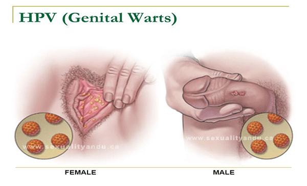 gaura de vierme pentru adulți hpv symptoms throat cancer