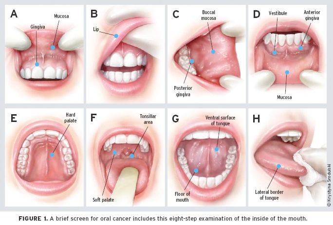 hpv mouth cold sores