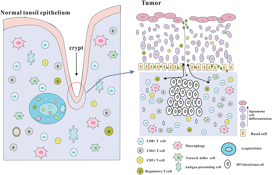 hpv oncogene positif cancer hpv high risk cin 1