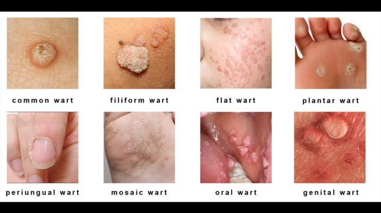 Warts medical treatment Wart treatment that works, Papillomavirus langue chien
