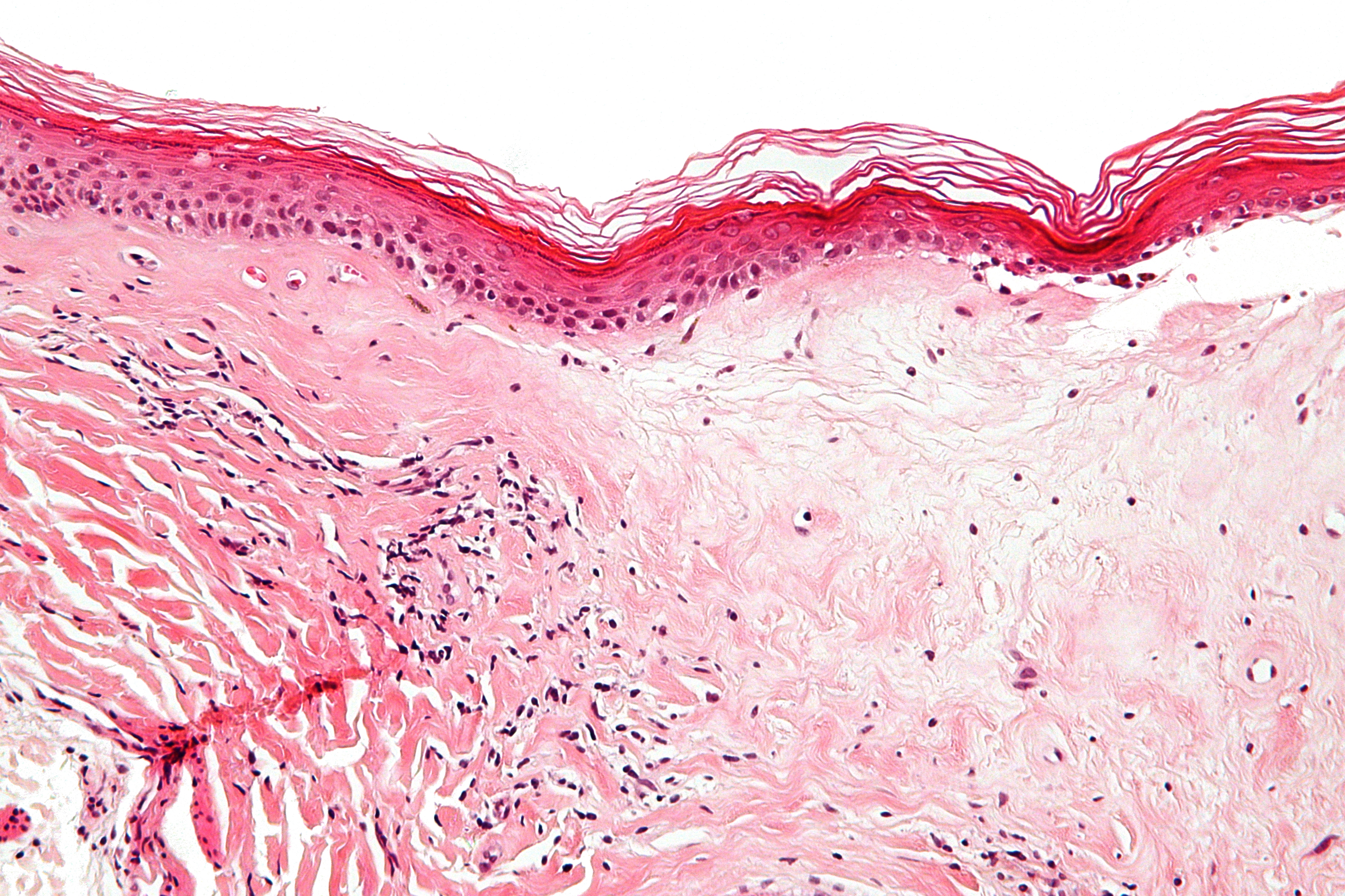Hpv on the skin rash Hpv symptoms skin rash - csrb.ro