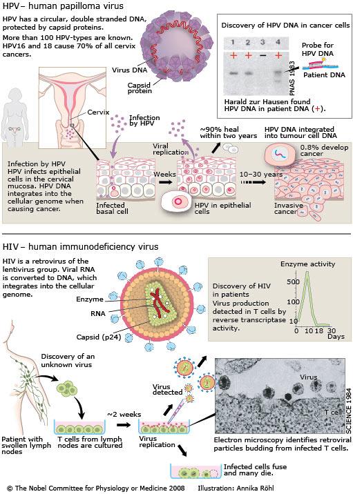 rectosigmoid cancer mri