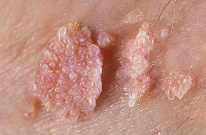 sto je papillomavirus împotriva viermilor fenpraz