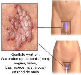 hpv virus symptomen vrouw