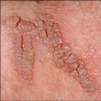 Hpv vírus nedir tedavisi.