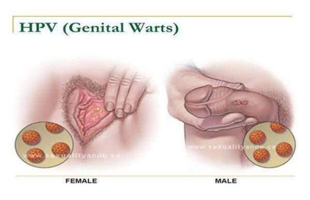 hpv wart symptoms