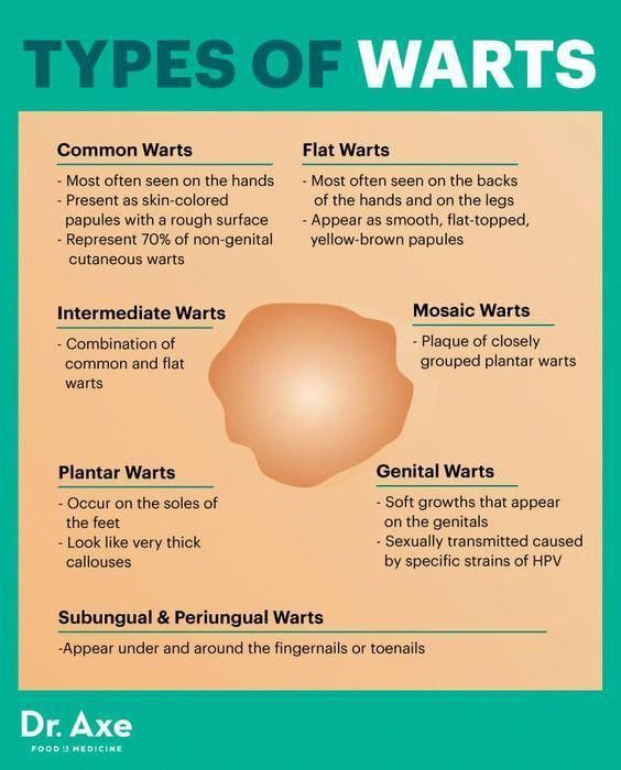 hpv warts hard or soft ciuperci intregi la cuptor