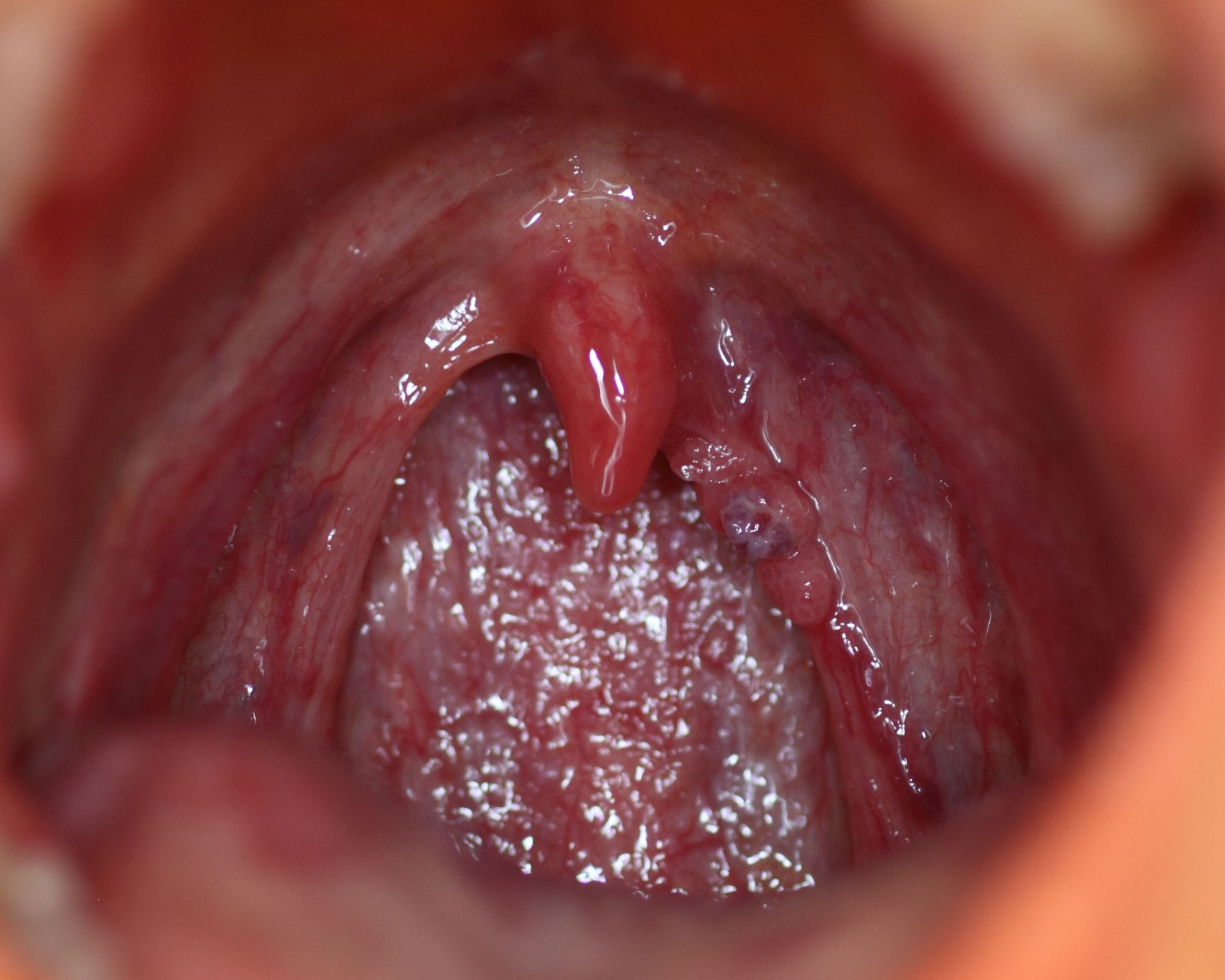 hpv warts on throat