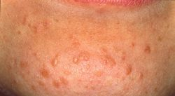 Hpv virus hals symptom - Hpv cancer hals Schistosomiasis lake victoria