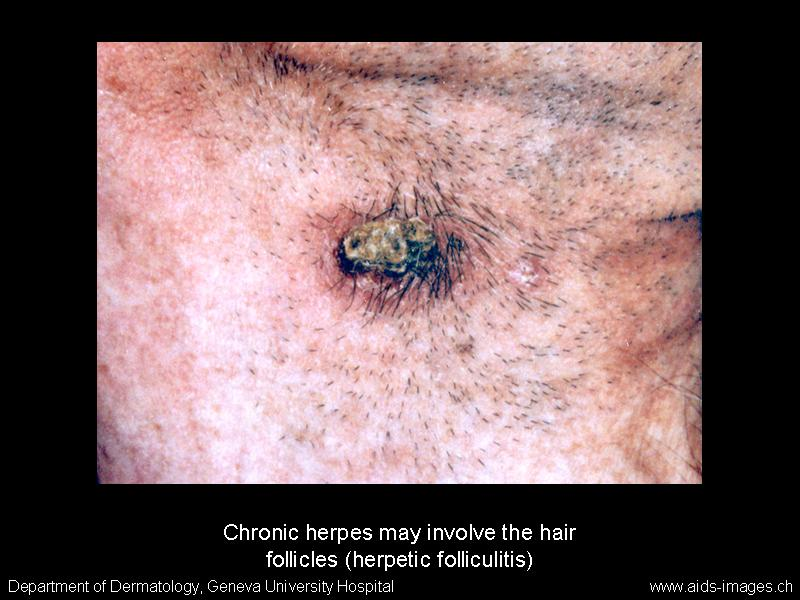 Hpv herpes skillnad