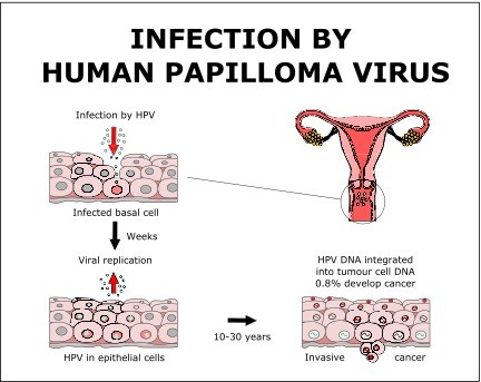 human papilloma virus linked to cancer