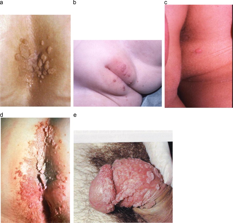 human papillomavirus infection of the skin