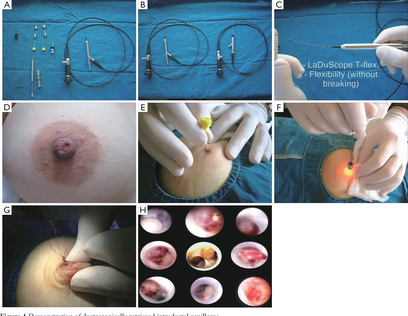 intraductal papilloma left untreated prescription cream for hpv warts