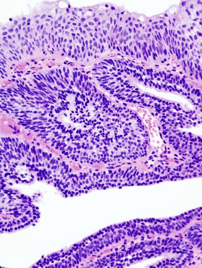 Urinary bladder papilloma pathology, Search Articles