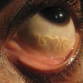 les parasites de l homme helmintele sunt parazite