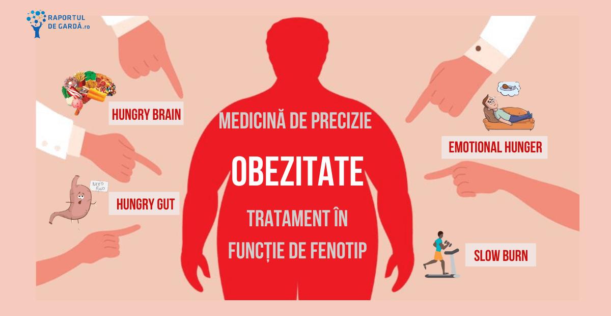 tratamentul obezitatii