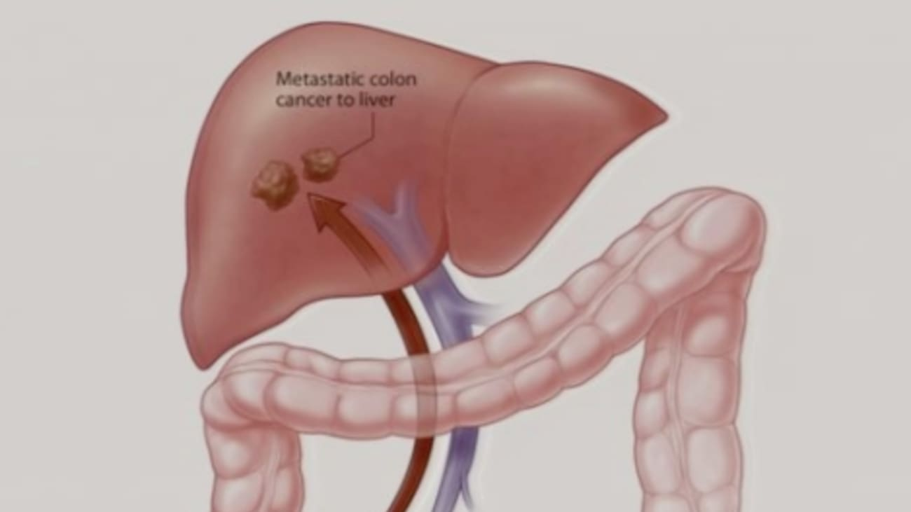 Metastatic cancer of the colon survival rate,