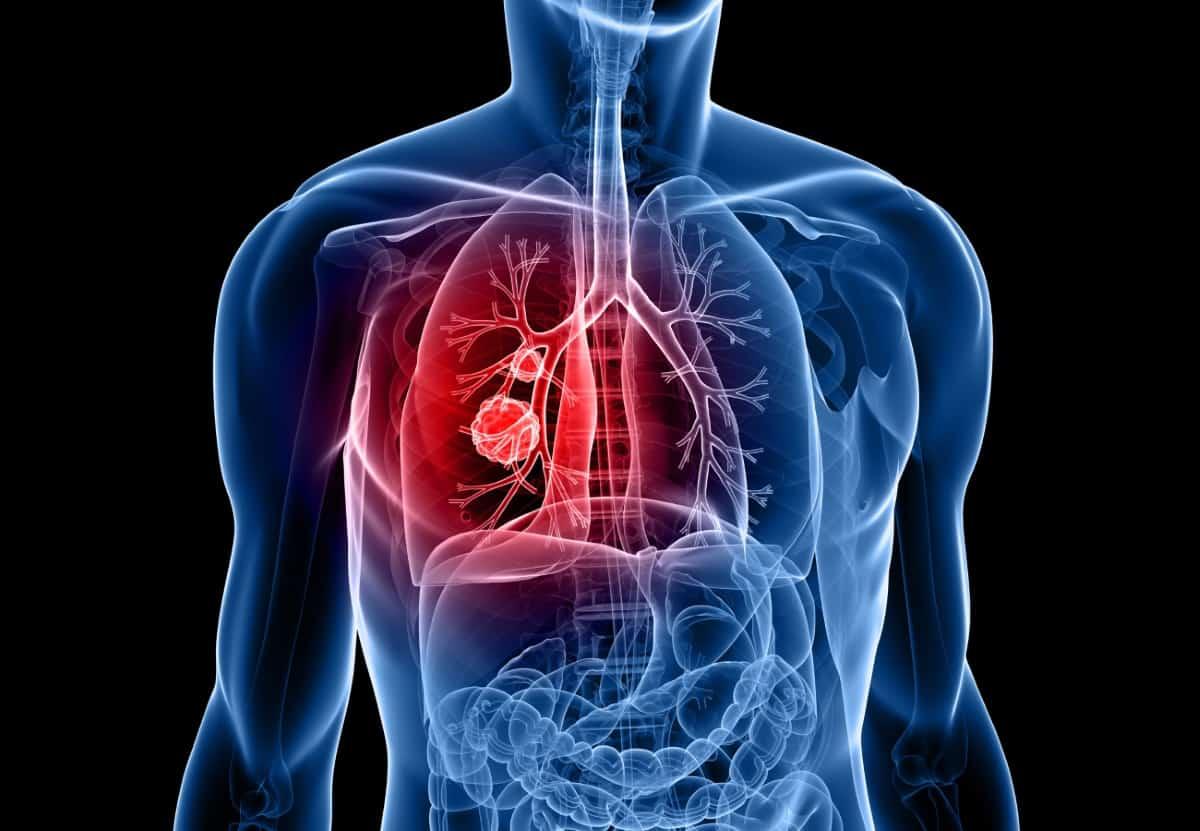 lung cancer - Traducere în română - exemple în engleză | Reverso Context