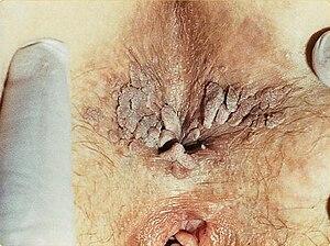 negi genitale în anal tratamentul cu viermi