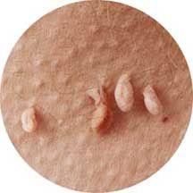 Negii pe picioare remedii populare | Infecție fungică - Nizhnekamsk elimină papiloma