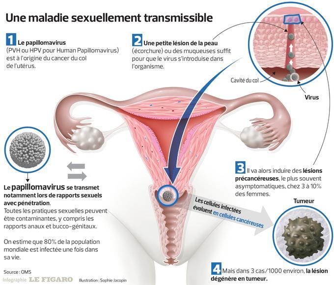Origine hpv papillomavirus. Psychologies: Ce este virusul HPV?