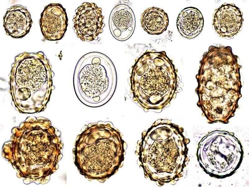 ouă de helmint parazite