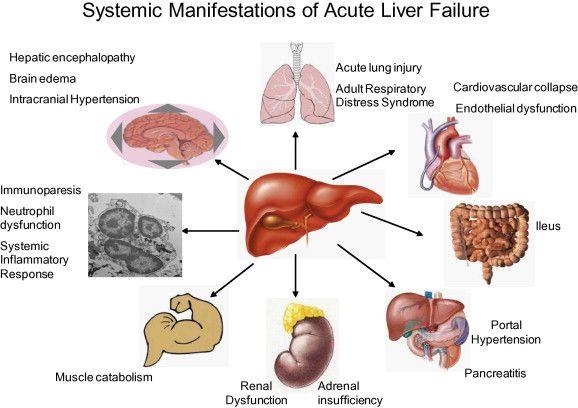 pancreatic cancer hepatic encephalopathy oxiuros y sus complicaciones