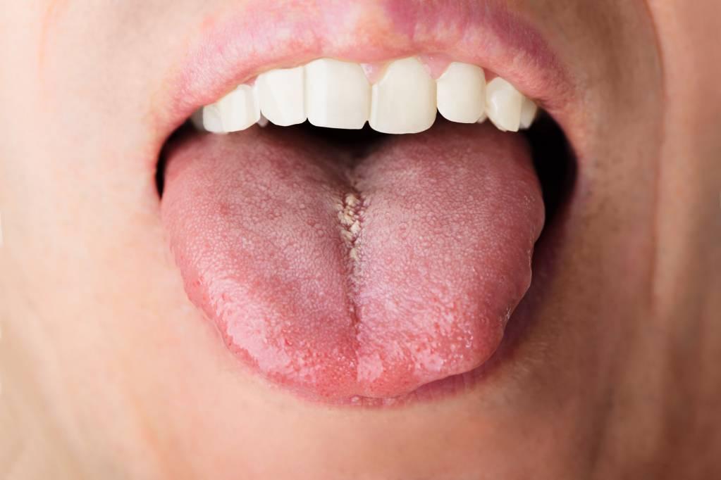 papillom entfernen mund tratamentul infecțiilor cu helmint de crap
