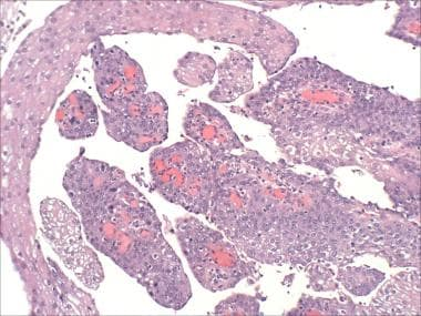 papilloma in the bladder