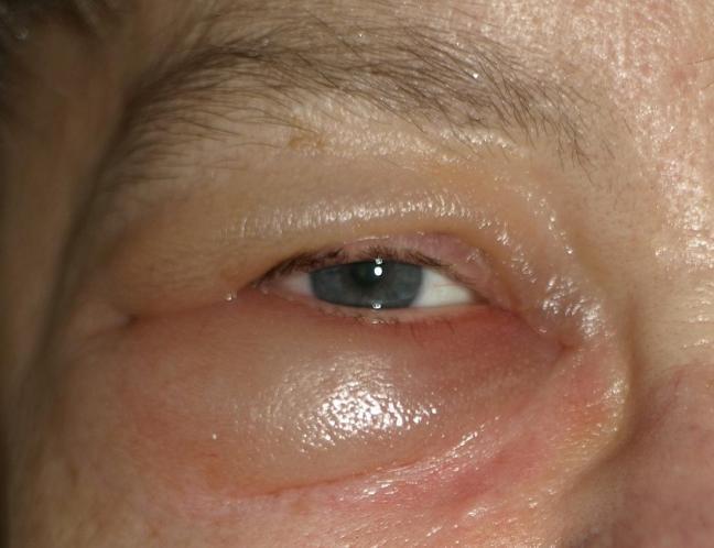 papilloma interno occhio sunt casti în cod?