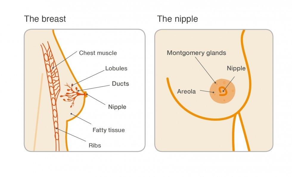 papilloma intraductal cyst