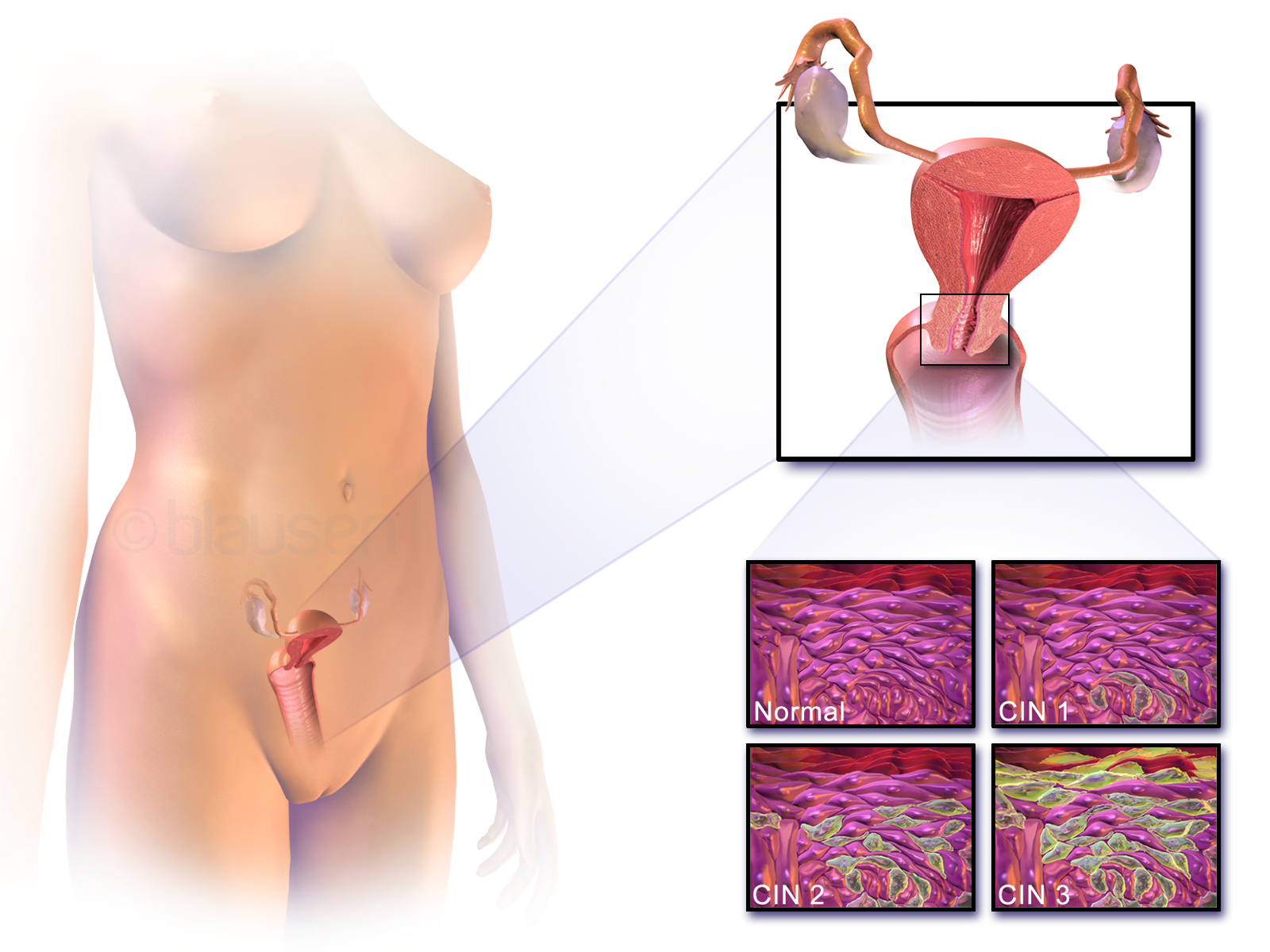 Papillomavirus kya hai Cervical cancer ke lakshan in hindi