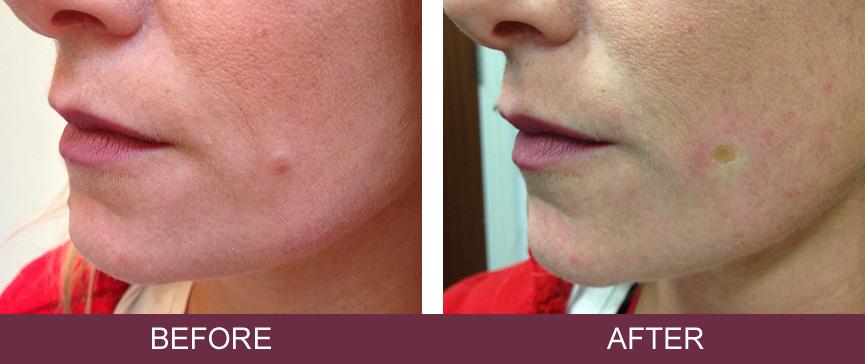 Wart treatment dermatologist