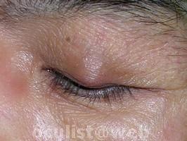 Papilloma of nostril - Tratament pentru parazi?i intestinali
