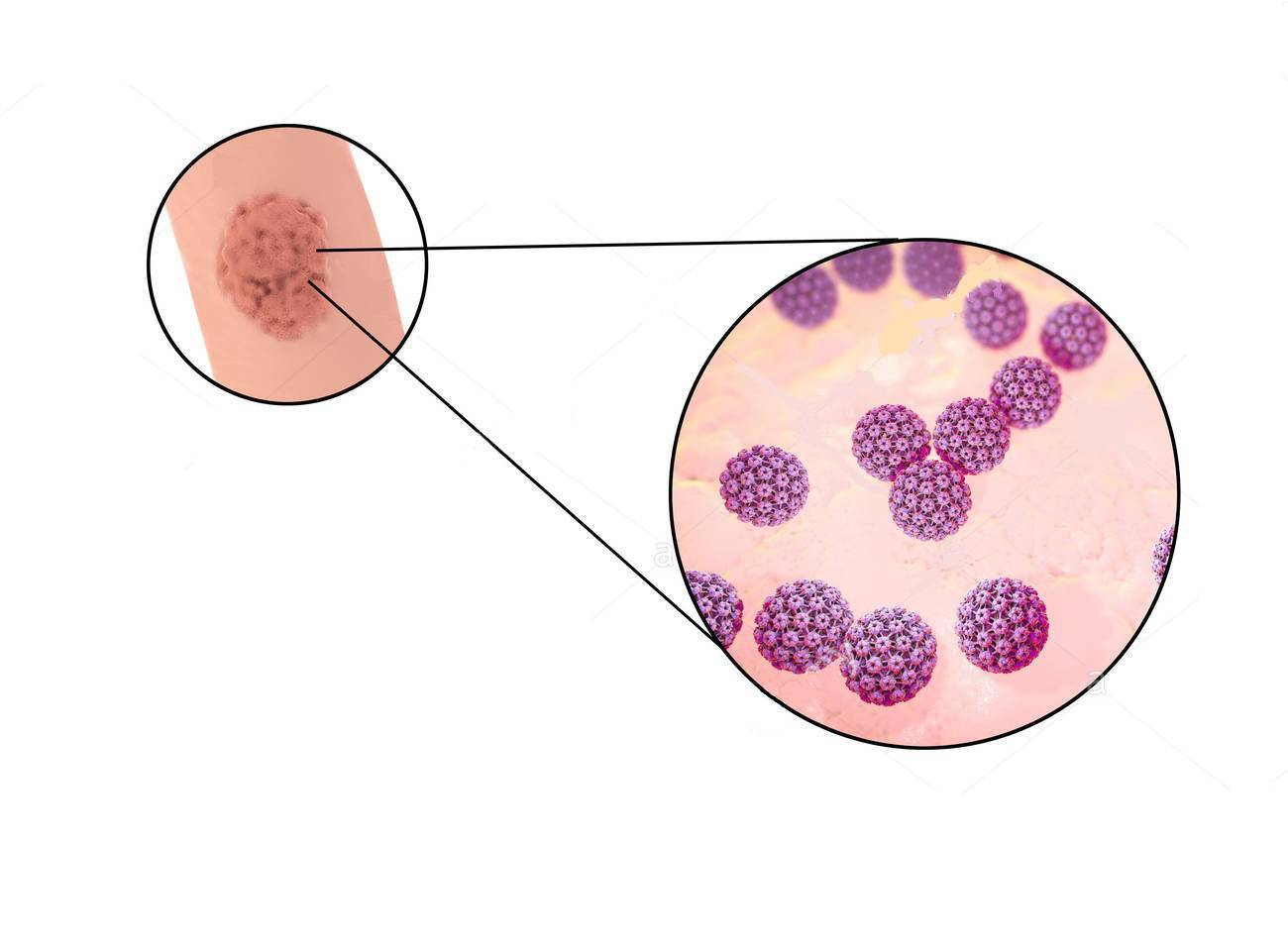 papilloma virus e ritardo ciclo tenie la pisici