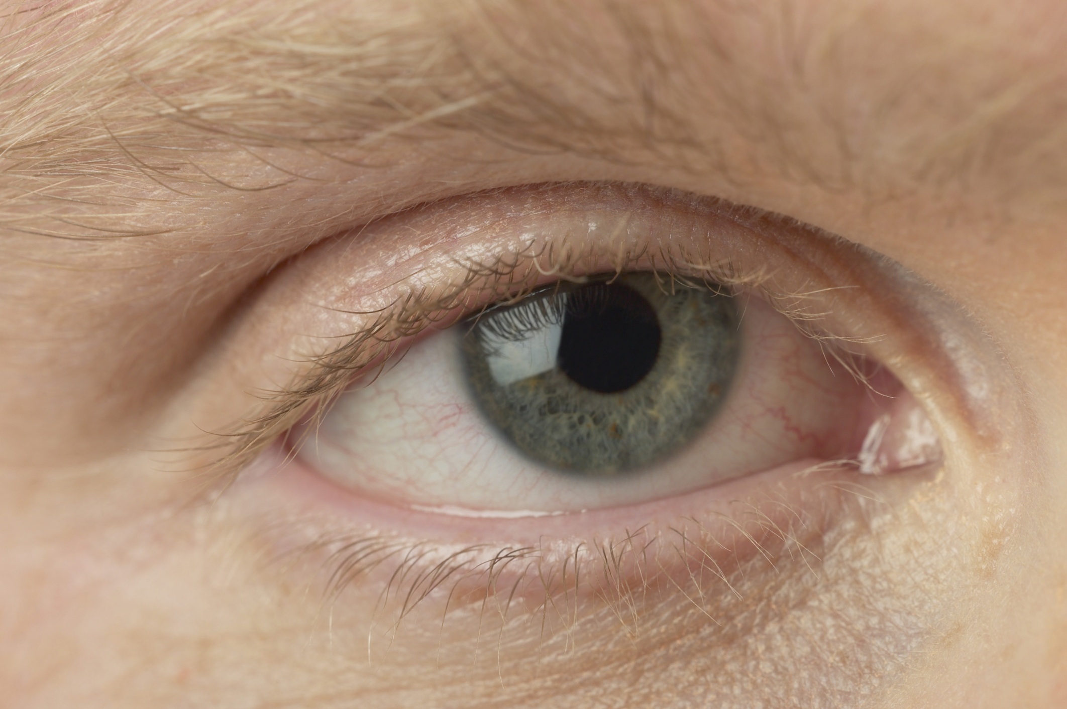 papilloma virusi haqida invazie helmint, cum să se identifice