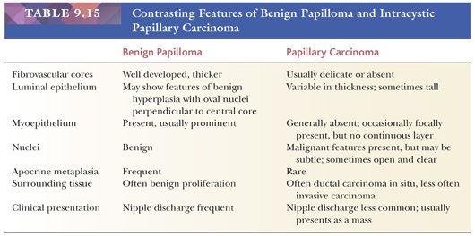 Duct papilloma pathology - csrb.ro